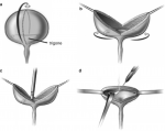 Diversion: The Last Resort of Male Urethral Reconstruction