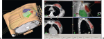 Radiation Therapy Following Breast-Conserving Surgery