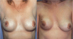 Breast Cancer Diagnosis, Prognosis, and Treatment in Augmented Women
