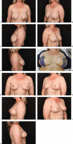 Team Approach to Nipple-Sparing Mastectomy