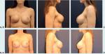 Avoiding Pitfalls in Symmetry Procedures Following Unilateral Autologous Versus Implant-Based Reconstruction