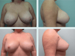 Secondary Breast Reduction
