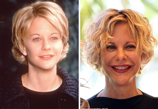 Meg Ryan Facelift