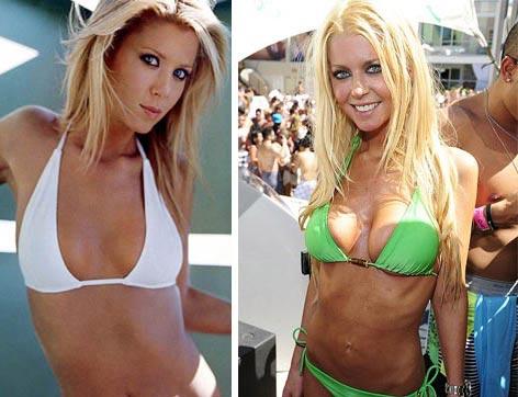Tara Reid Worst Plastic Surgery