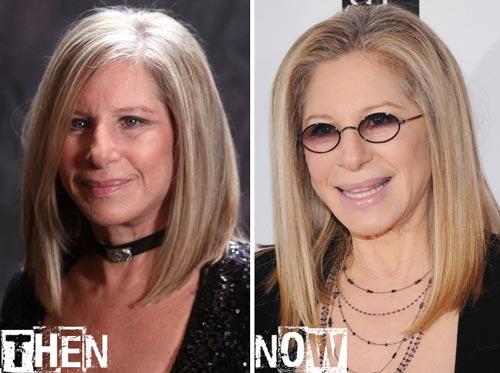 Barbra Streisand Plastic Surgery Before & After Read more at: http://www.plasticsurgerytalks.com/barbra-streisand-plastic-surgery/