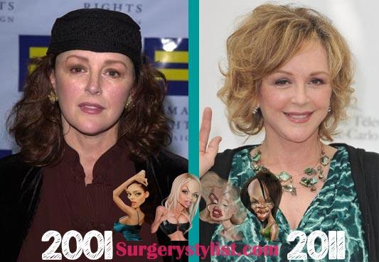 Bonnie Bedelia Plastic Surgery Before & After