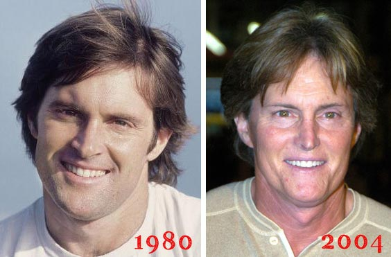 Bruce Jenner Plastic Surgery Before & After