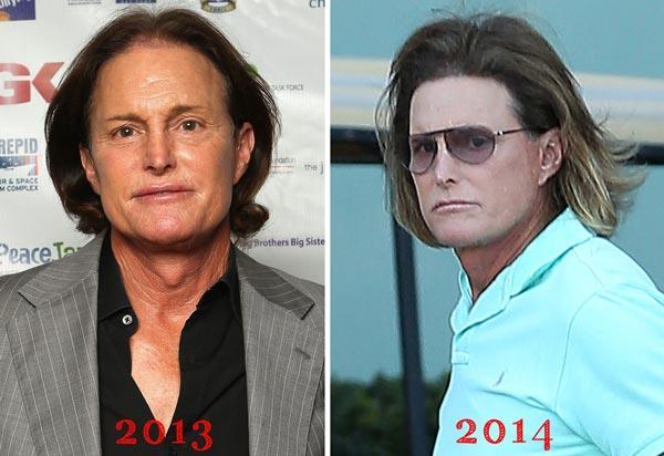 Bruce Jenner Plastic Surgery