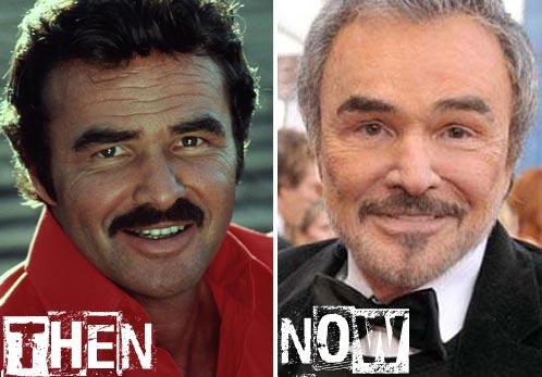 Burt Reynolds Plastic Surgery Before & After
