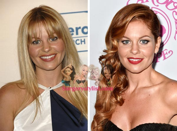 Candace Cameron Plastic Surgery Before & After