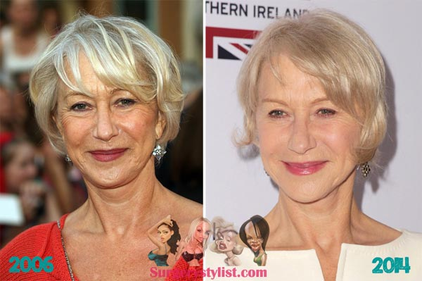 Helen Mirren Facelift