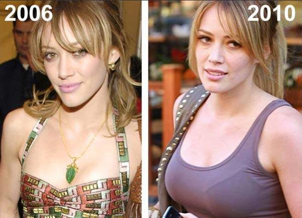 Hilary Duff Breast Implants