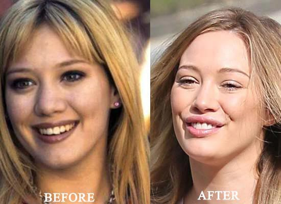 Hilary Duff Plastic Surgery Before & After