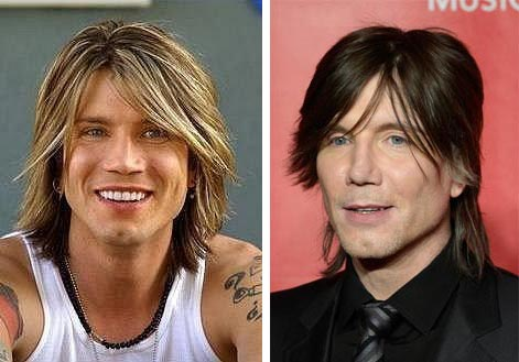John Rzeznik Plastic Surgery Before & After