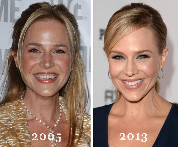 Julie Benz Plastic Surgery Before & After
