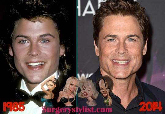 Rob Lowe Plastic Surgery Before & After