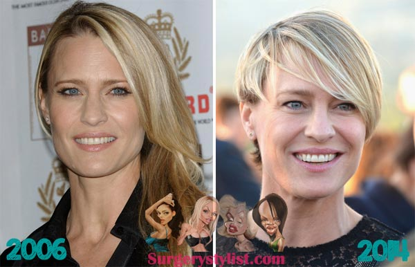 Robin Wright Penn Plastic Surgery Before & After