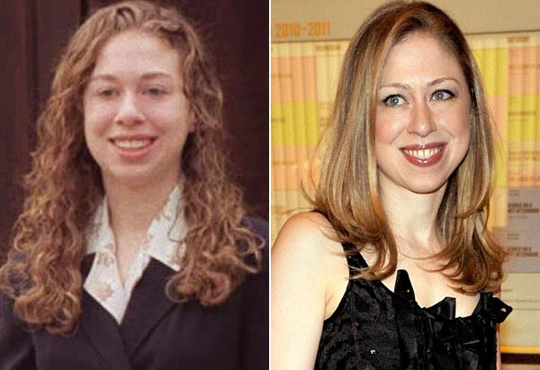 Chelsea Clinton Plastic Surgery Before After