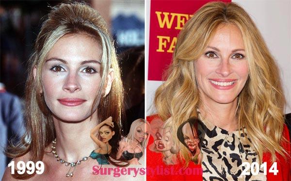 Julia Roberts Plastic Surgery