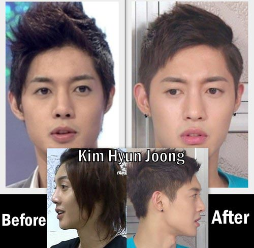 Kim Hyun Joong Nose Job