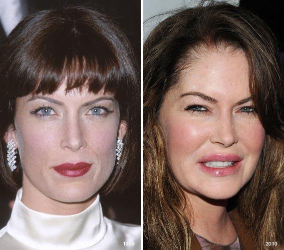 Lara Flynn Boyle Plastic Surgery Disaster