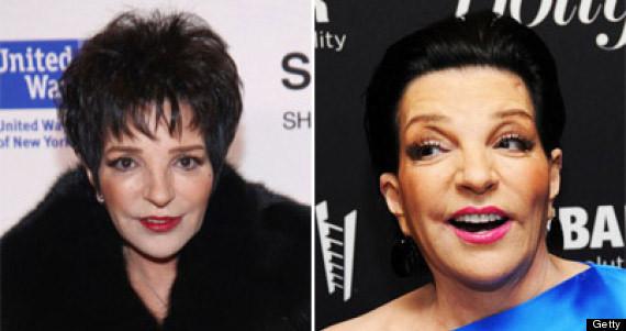 Liza Minnelli Plastic Surgery