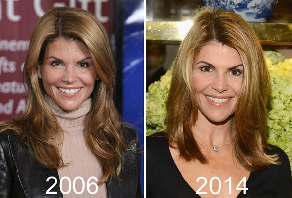 Lori Loughlin Plastic Surgery Before & After