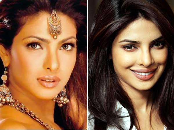 Priyanka Chopra Plastic Surgery Picture