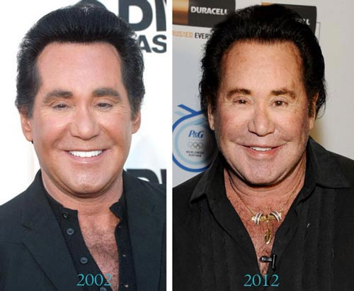 Wayne Newton Plastic Surgery Before & After