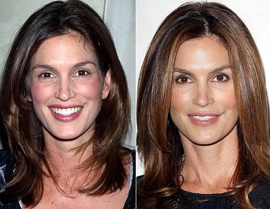 Cindy Crawford Plastic Surgery Photo