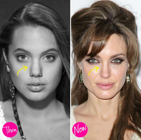 Angelina Jolie Nose Job Before & After