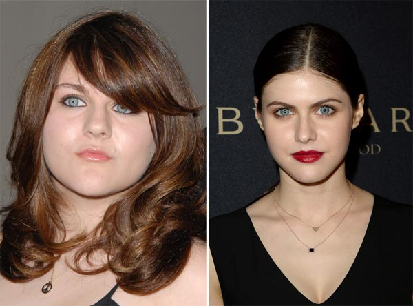 Frances Bean Cobain Plastic Surgery Before & After