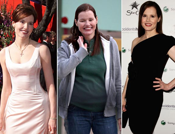 Geena Davis Plastic Surgery Procedures