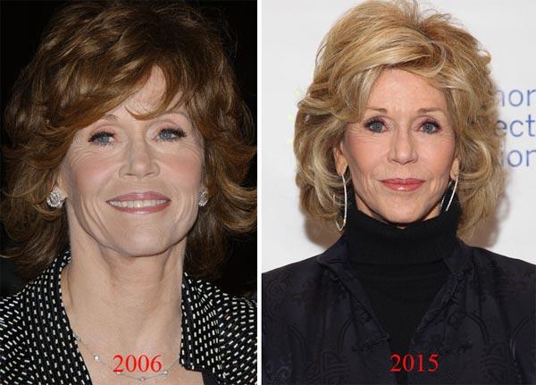 Jane Fonda Surgery Before & After