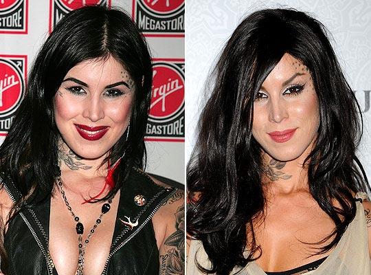 Kat Von D Plastic Surgery Before & After