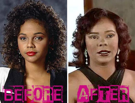 Lark Voorhies Plastic Surgery Before & After