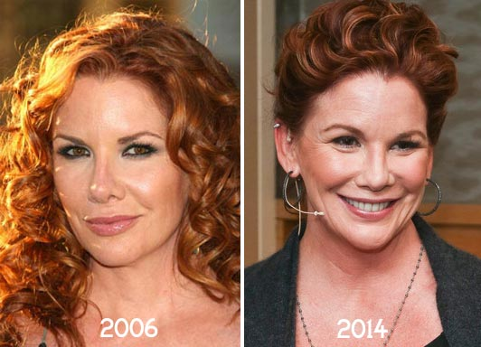 Melissa Gilbert Plastic Surgery Before & After