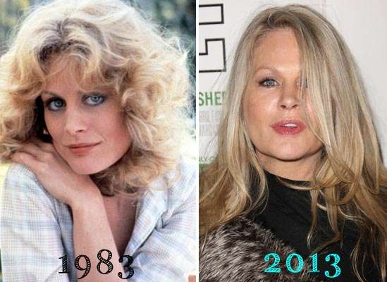 Beverly D Angelo Plastic Surgery