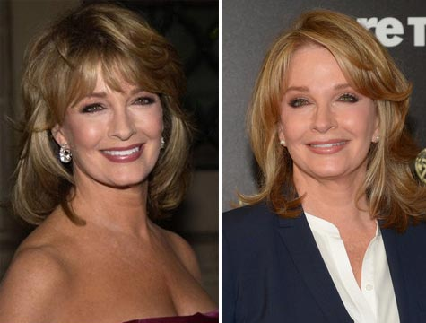 Deidre Hall Plastic Surgery Before & After