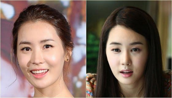 Lee Da Hae Plastic Surgery Before & After