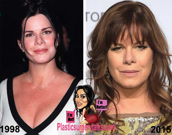 Marcia Gay Harden Plastic Surgery Before & After