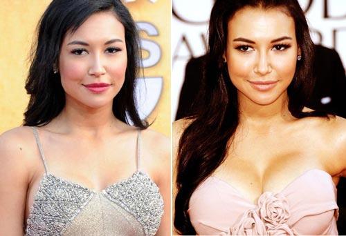 Naya Rivera Plastic Surgery Before & After