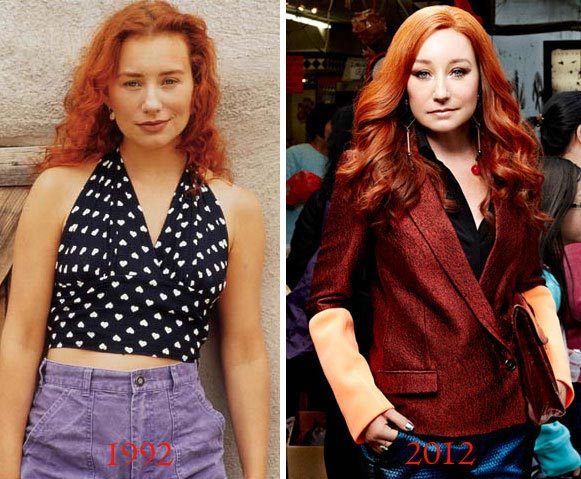 Tori Amos Plastic Surgery Before & After