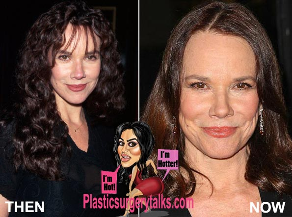 Barbara Hershey Plastic Surgery