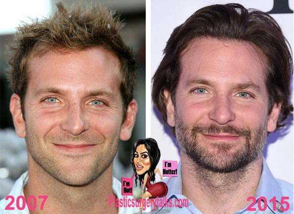 Bradley Cooper Plastic Surgery Before & After