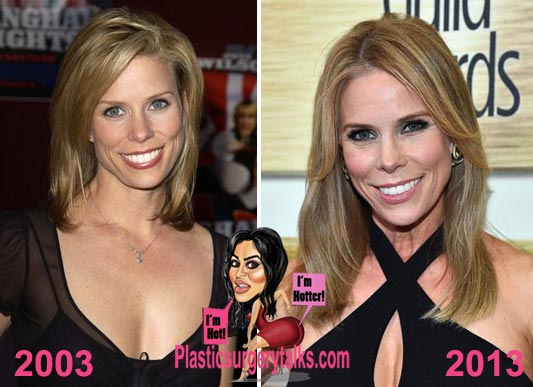 Cheryl Hines Plastic Surgery Before & After