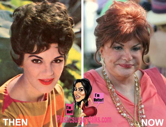 Connie Francis Plastic Surgery Before & After