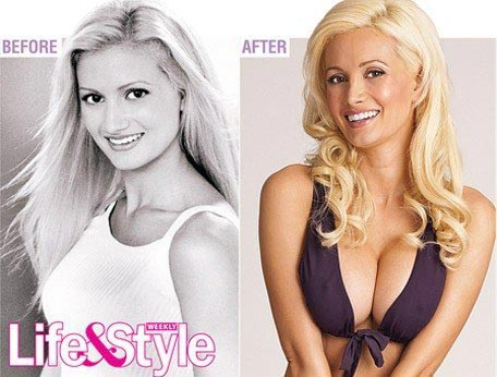 Holly Madison Breast Implants
