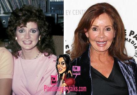 Jackie Zeman Plastic Surgery