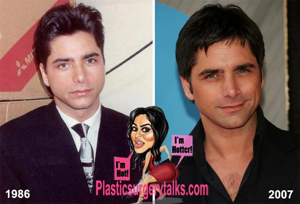 John Stamos Plastic Surgery Before & After